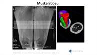 Bildliche Darstellung des Muskelabbaus