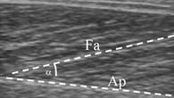 Menschlicher Muskel in einer Ultraschallaufnahme