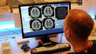 Wirkt sich Stress auf die Gehirnstrukturen aus?