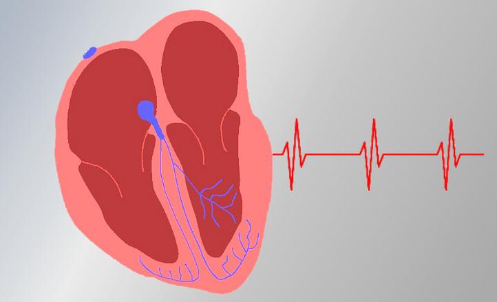 Schematischer Längsschnitt durch ein menschliches Herz. Bild: DLR (CC-BY 3.0)